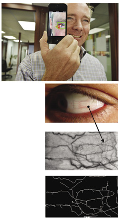 man holding device with photos below of eye and closeup of eye anatomy