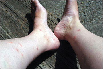 Fleas often target the legs and ankles